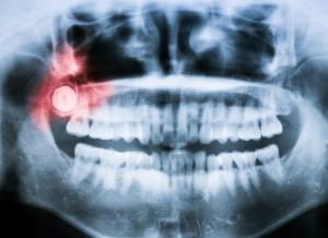 manchester center dentist