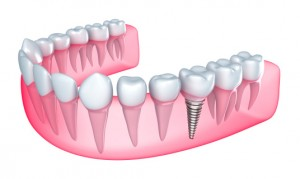 If you're looking for dental implants in Manchester Center, contact the office of Dr. Jonathan Mason.