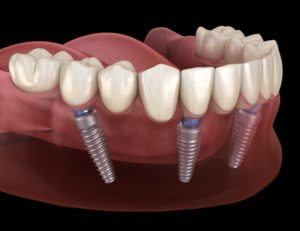 full denture on bottom arch retained by dental implants
