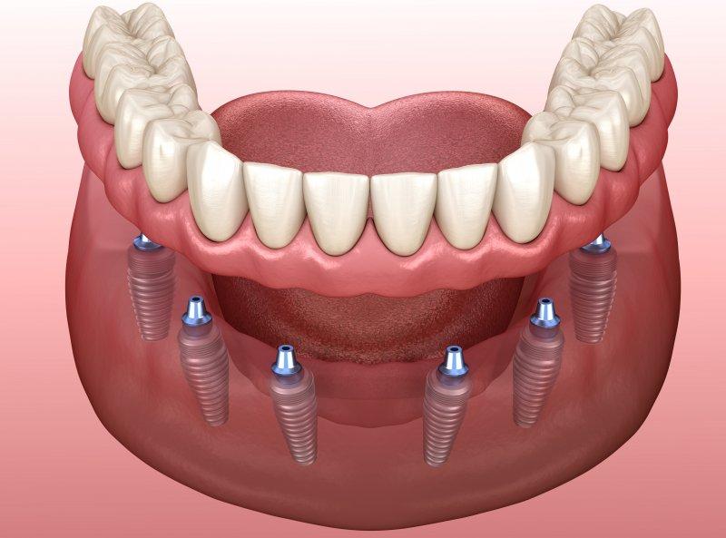 Diagram of an implant denture